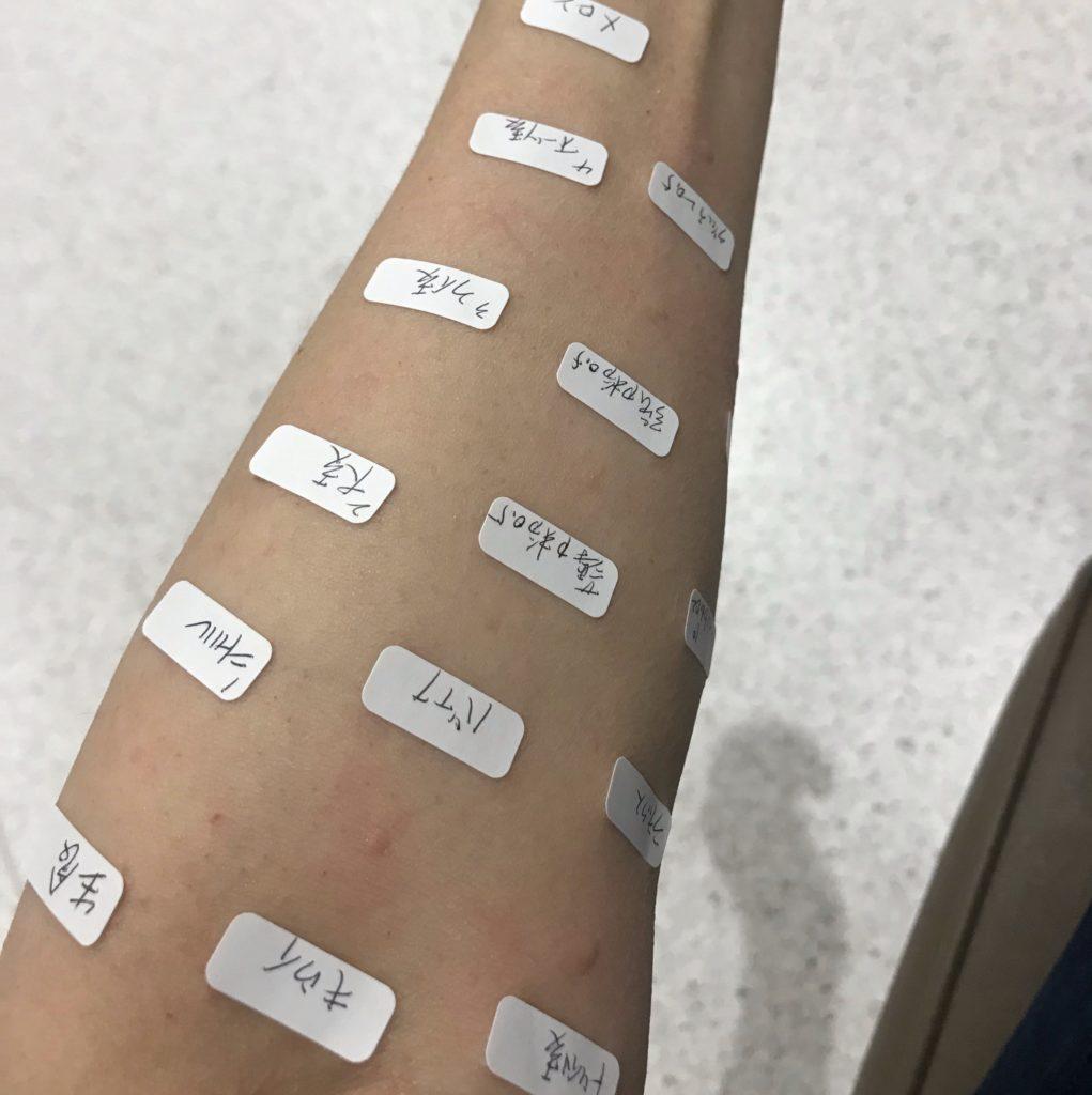 食物アレルギー プリックテスト
