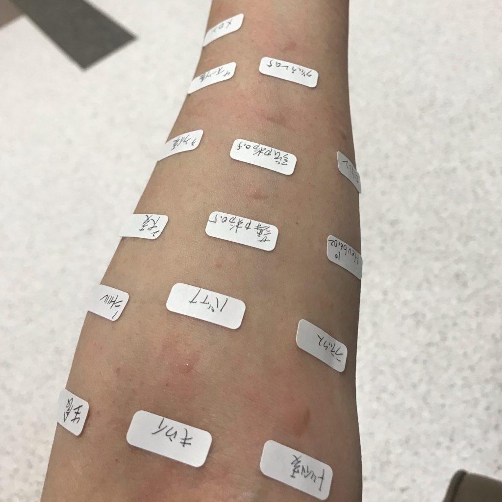 アレルギー プリックテスト